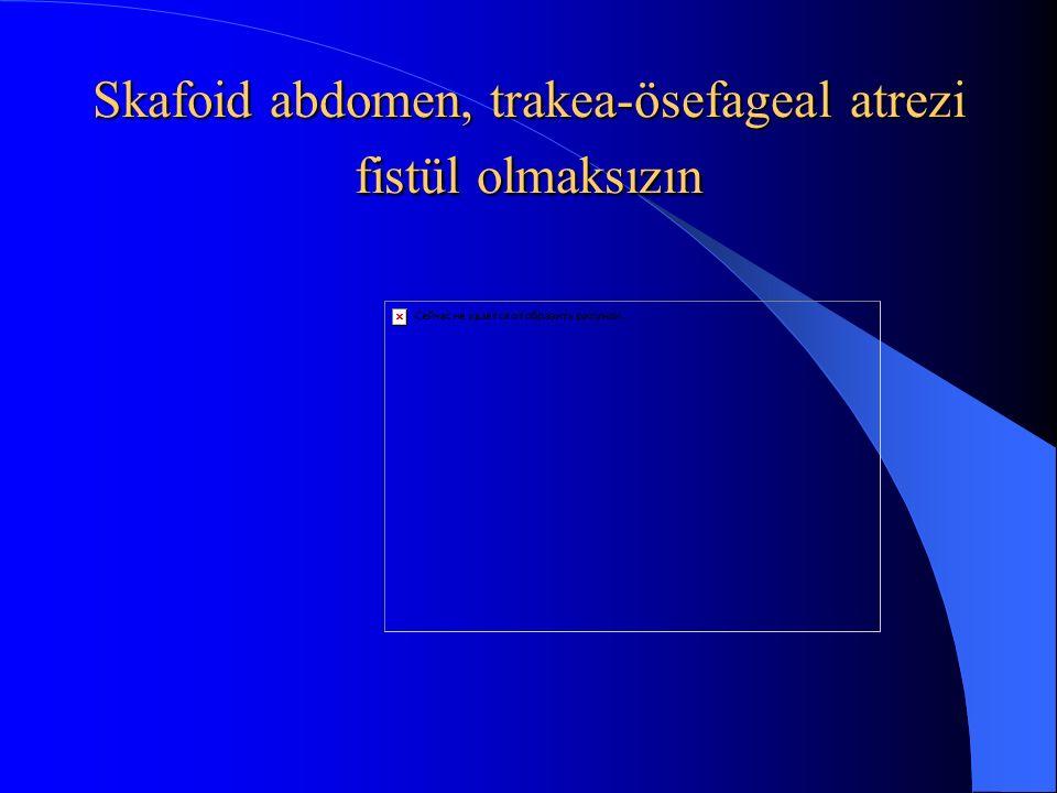 Skafoid abdomen, trakea-ösefageal atrezi fistül olmaksızın