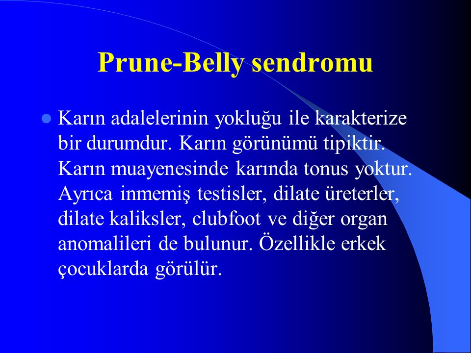 Prune-Belly sendromu
