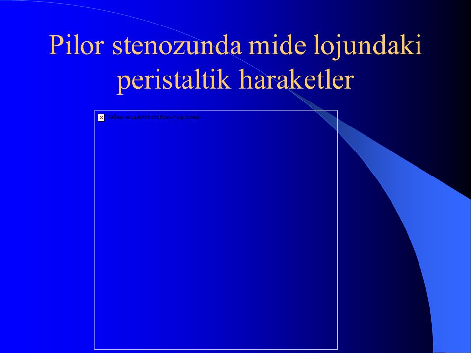 Pilor stenozunda mide lojundaki peristaltik haraketler