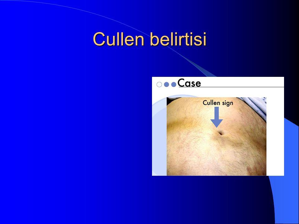 Cullen belirtisi