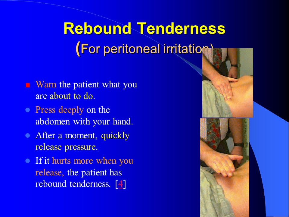 Rebound Tenderness (For peritoneal irritation)