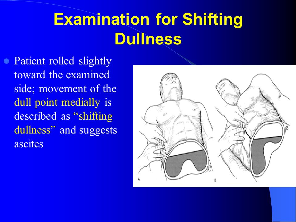 Examination for Shifting Dullness
