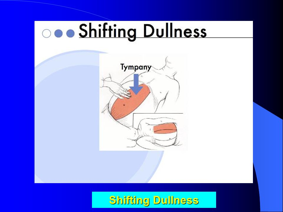 Shifting Dullness