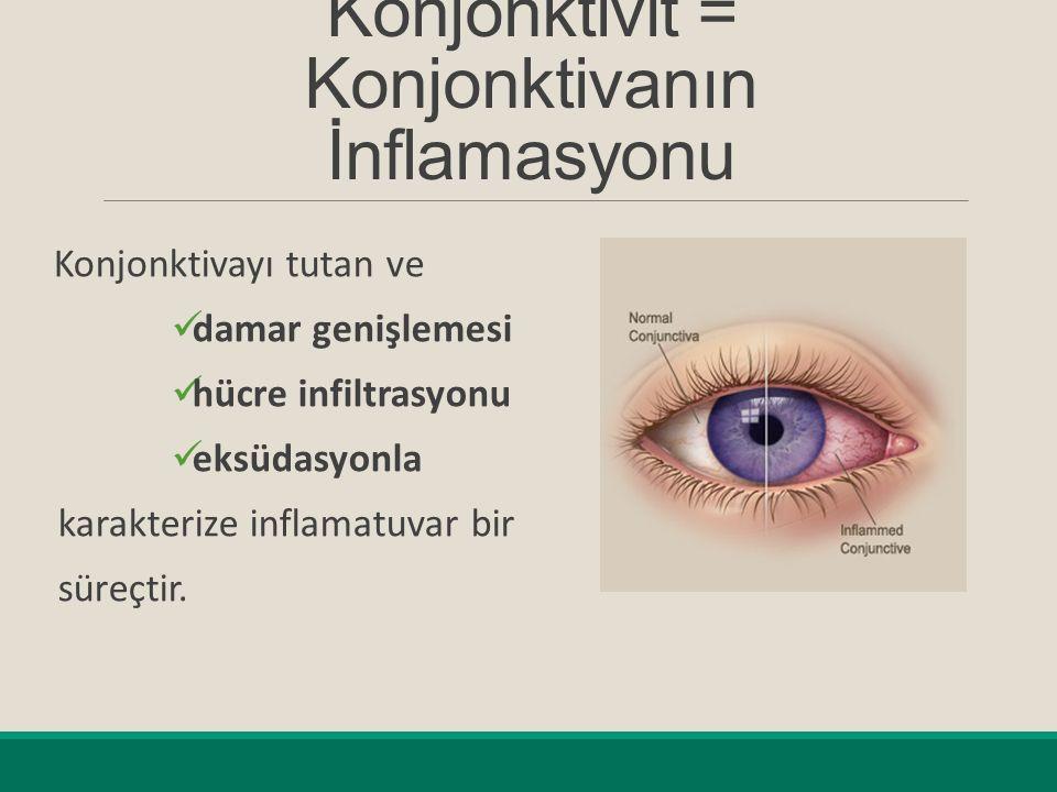 Konjonktivit = Konjonktivanın İnflamasyonu