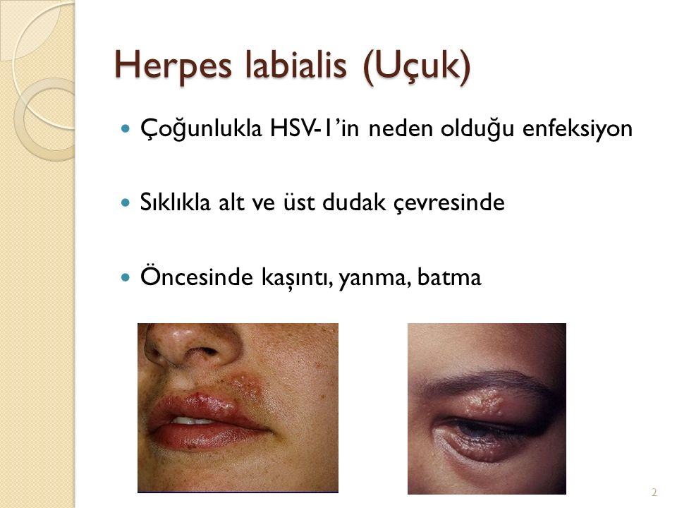 Herpes labialis (Uçuk)