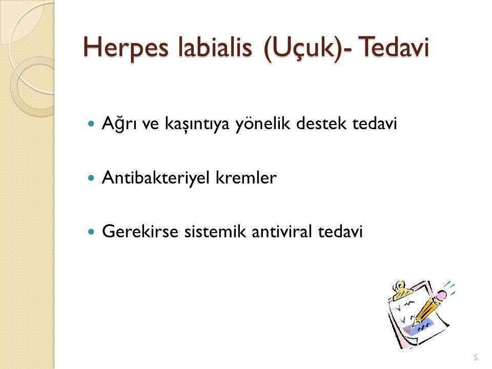 Herpes labialis (Uçuk)- Tedavi