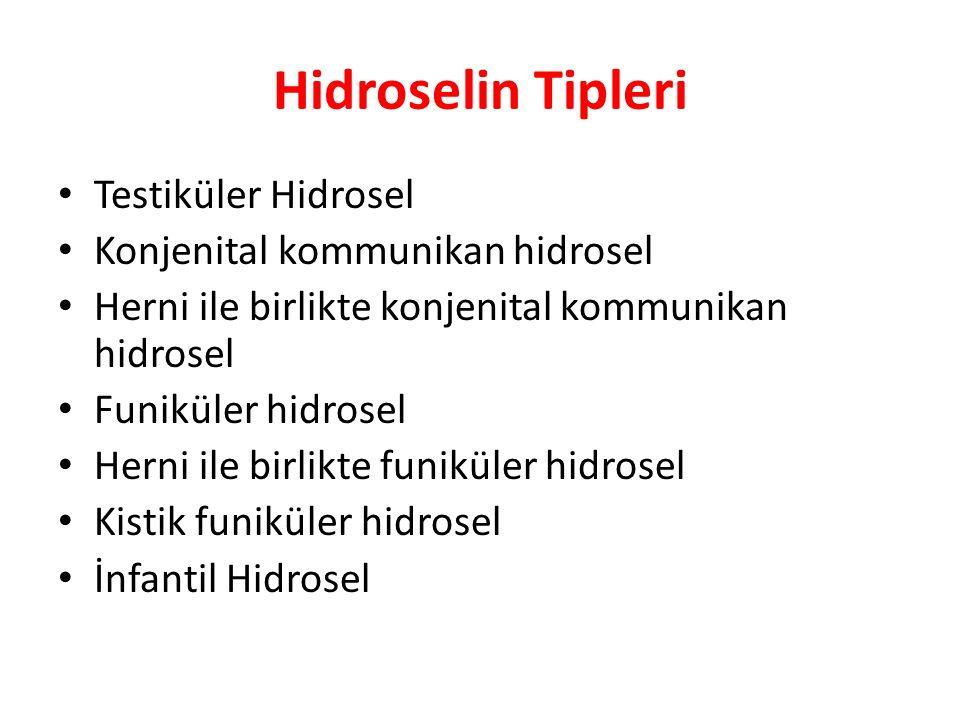 Hidroselin Tipleri Testiküler Hidrosel Konjenital kommunikan hidrosel