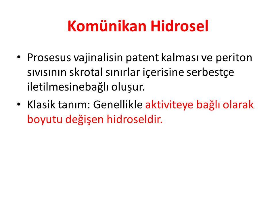 Komünikan Hidrosel Prosesus vajinalisin patent kalması ve periton sıvısının skrotal sınırlar içerisine serbestçe iletilmesinebağlı oluşur.