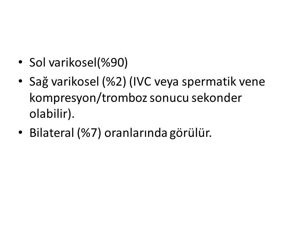 Sol varikosel(%90) Sağ varikosel (%2) (IVC veya spermatik vene kompresyon/tromboz sonucu sekonder olabilir).