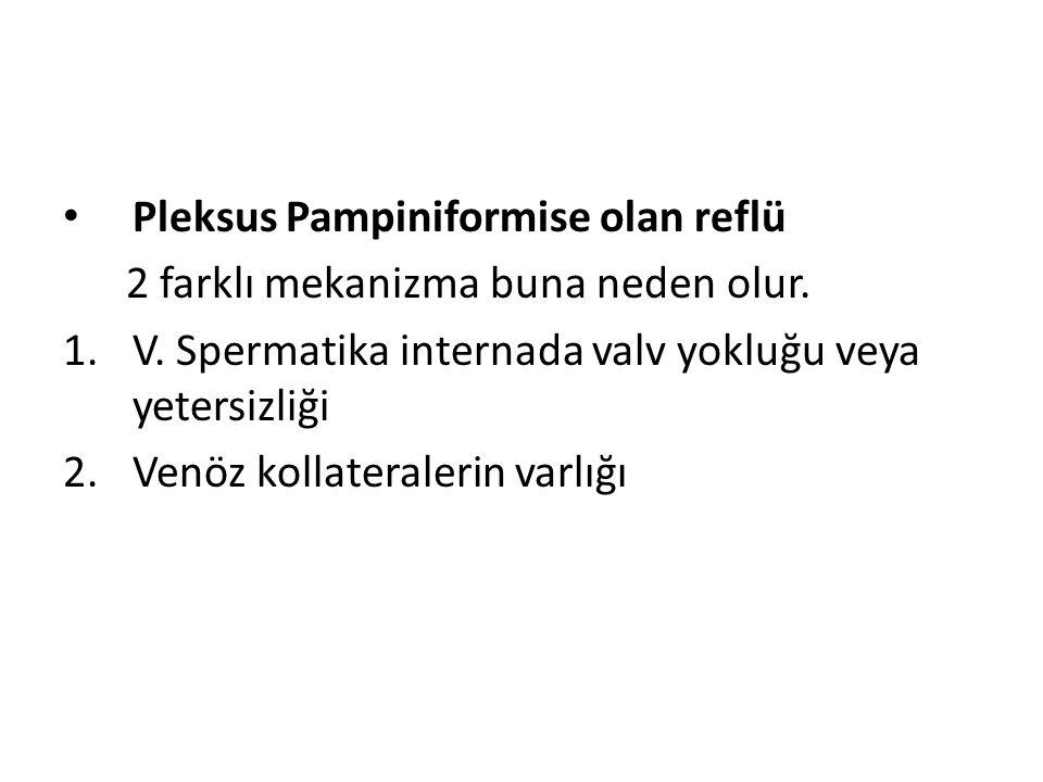 Pleksus Pampiniformise olan reflü