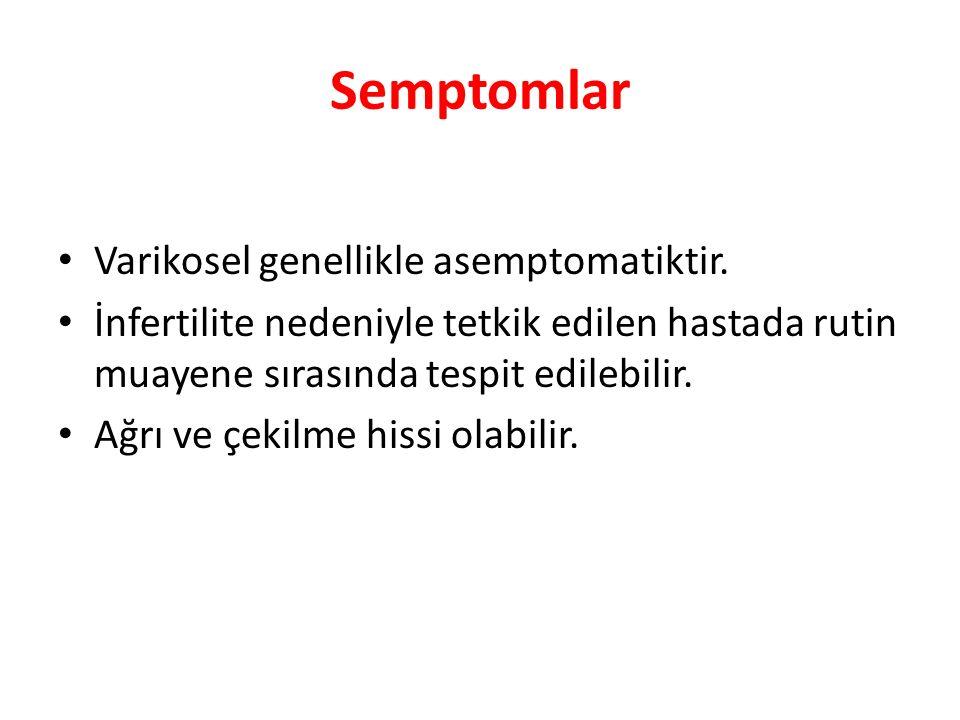 Semptomlar Varikosel genellikle asemptomatiktir.