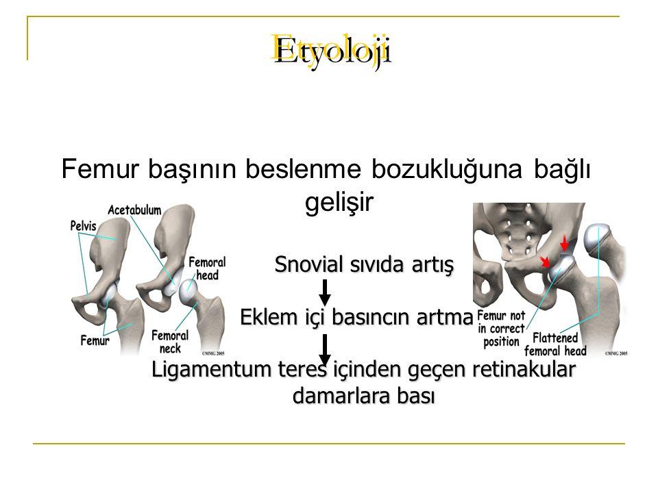 Etyoloji Femur başının beslenme bozukluğuna bağlı gelişir