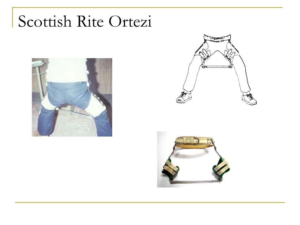 Scottish Rite Ortezi