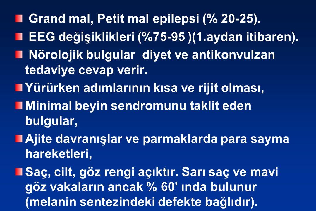 Grand mal, Petit mal epilepsi (% 20-25).