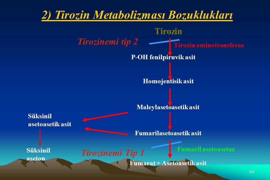 2) Tirozin Metabolizması Bozuklukları