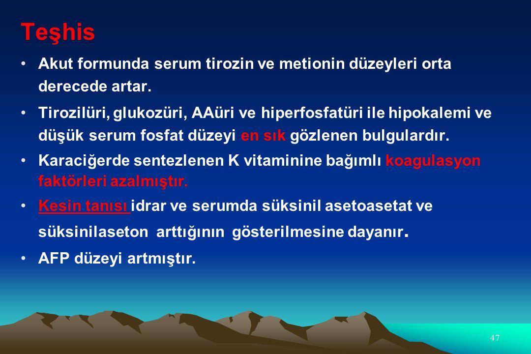 Teşhis Akut formunda serum tirozin ve metionin düzeyleri orta derecede artar.