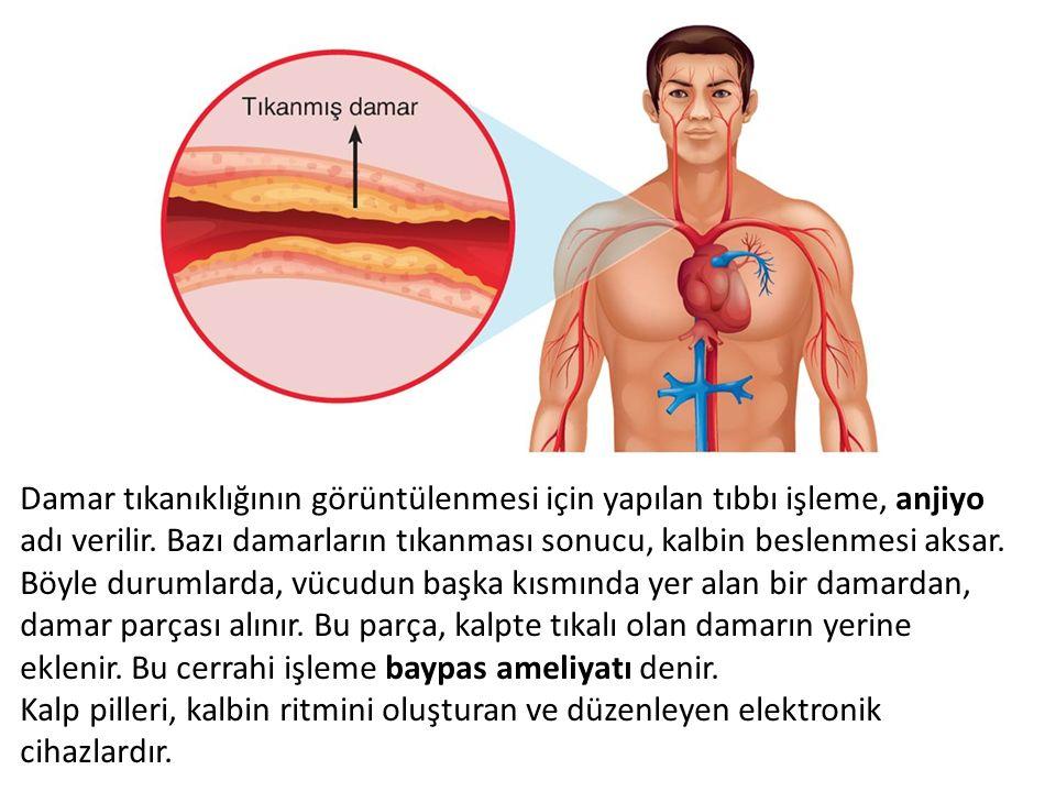 Damar tıkanıklığının görüntülenmesi için yapılan tıbbı işleme, anjiyo adı verilir. Bazı damarların tıkanması sonucu, kalbin beslenmesi aksar. Böyle durumlarda, vücudun başka kısmında yer alan bir damardan, damar parçası alınır. Bu parça, kalpte tıkalı olan damarın yerine eklenir. Bu cerrahi işleme baypas ameliyatı denir.