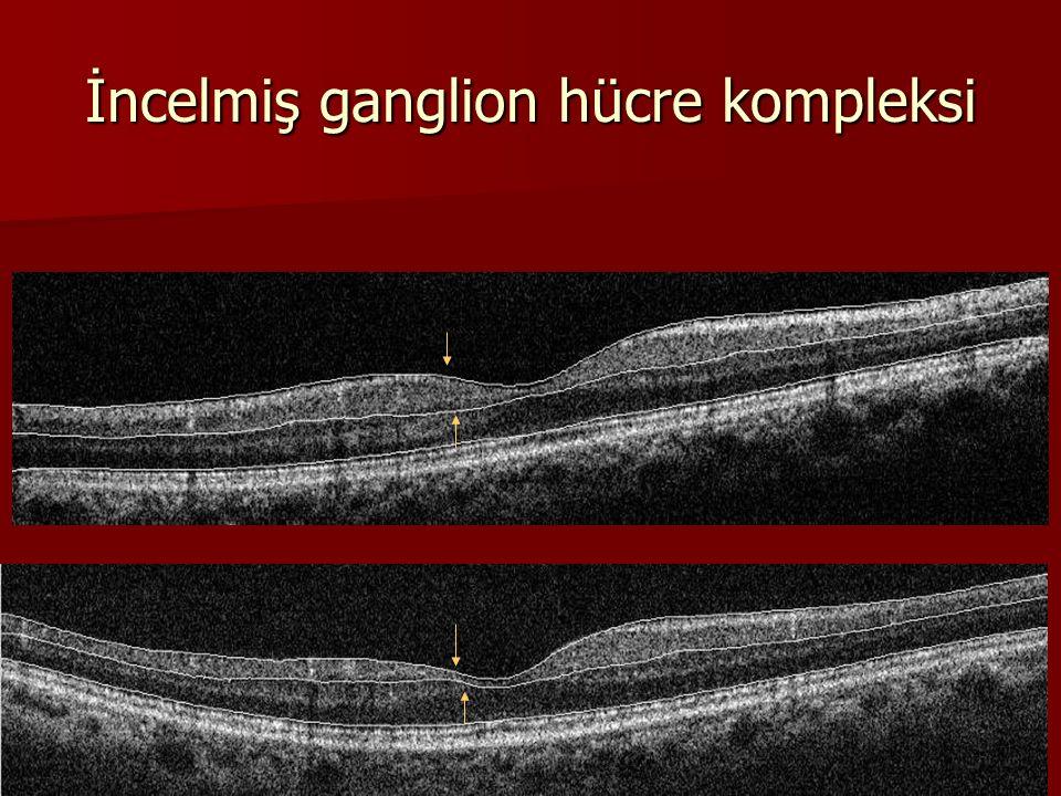 İncelmiş ganglion hücre kompleksi