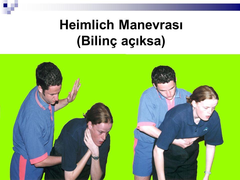 Heimlich Manevrası (Bilinç açıksa)