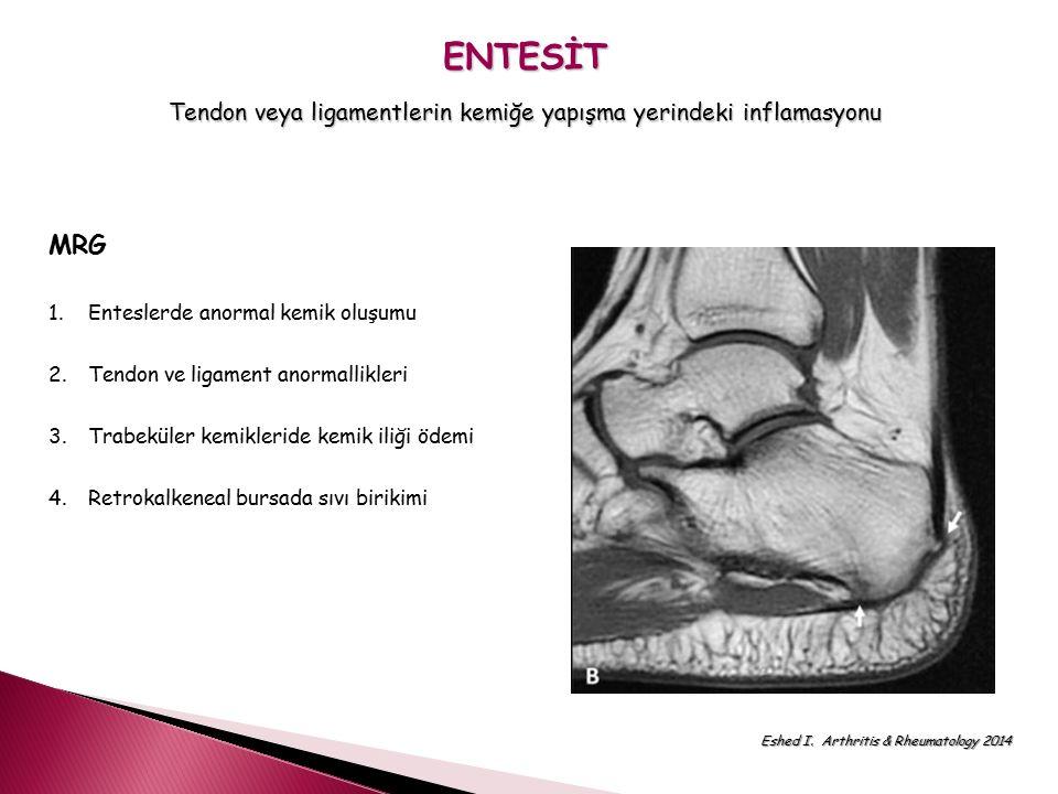 Tendon veya ligamentlerin kemiğe yapışma yerindeki inflamasyonu