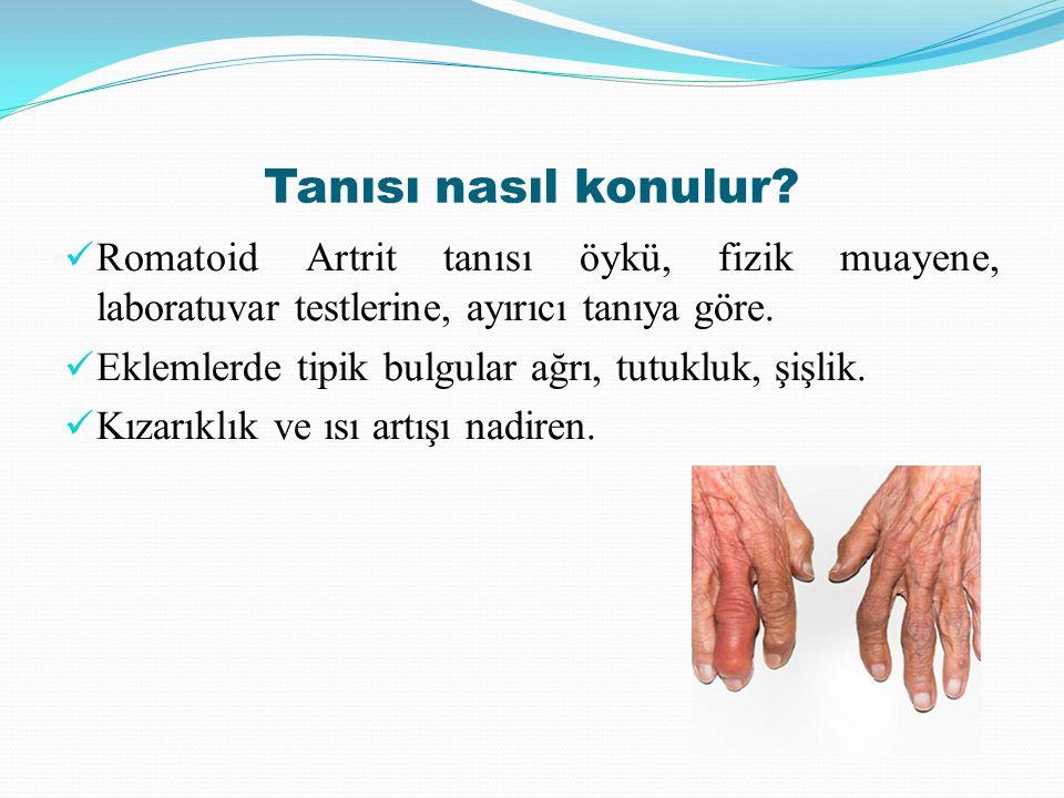 Tanısı nasıl konulur Romatoid Artrit tanısı öykü, fizik muayene, laboratuvar testlerine, ayırıcı tanıya göre.