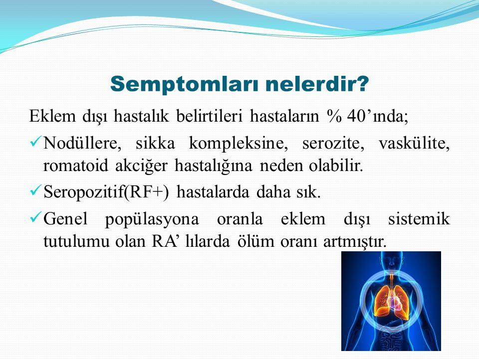 Semptomları nelerdir Eklem dışı hastalık belirtileri hastaların % 40'ında;