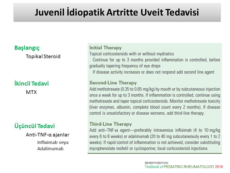 Juvenil İdiopatik Artritte Uveit Tedavisi