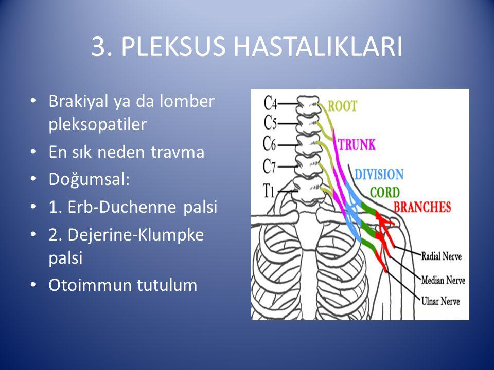 3. PLEKSUS HASTALIKLARI Brakiyal ya da lomber pleksopatiler