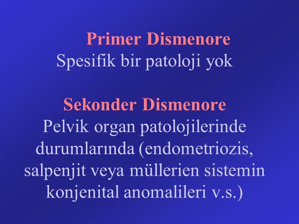 Primer Dismenore Spesifik bir patoloji yok Sekonder Dismenore Pelvik organ patolojilerinde durumlarında (endometriozis, salpenjit veya müllerien sistemin konjenital anomalileri v.s.)