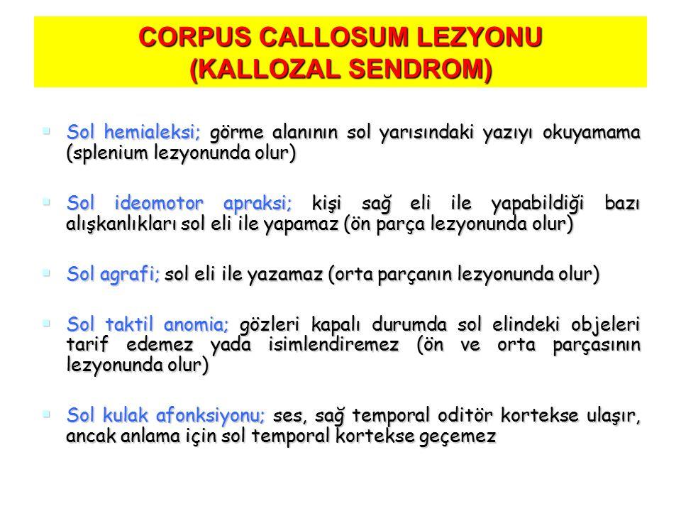 CORPUS CALLOSUM LEZYONU (KALLOZAL SENDROM)