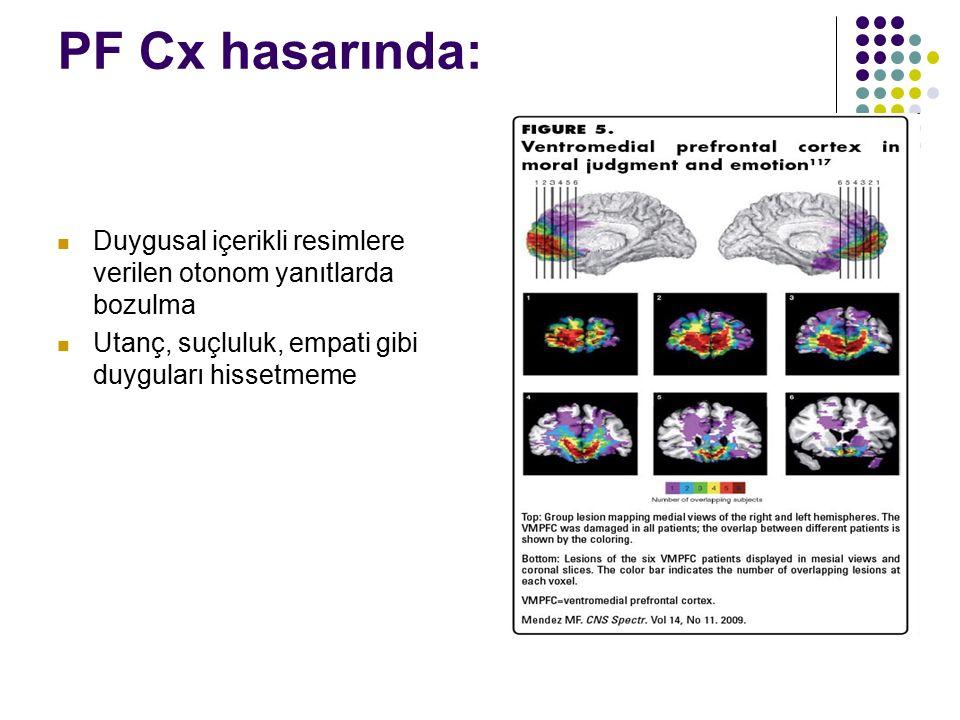 PF Cx hasarında: Duygusal içerikli resimlere verilen otonom yanıtlarda bozulma.