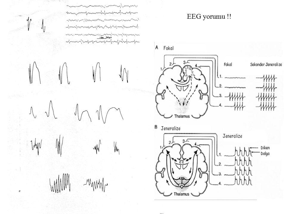 EEG yorumu !!