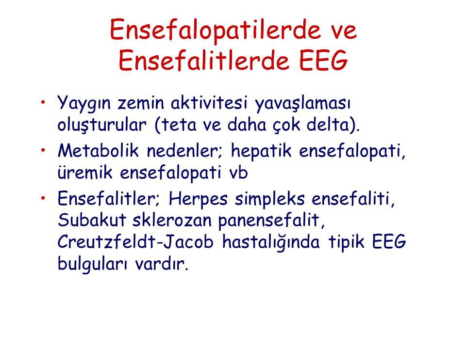 Ensefalopatilerde ve Ensefalitlerde EEG