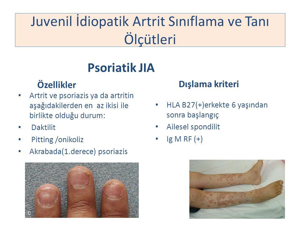 Juvenil İdiopatik Artrit Sınıflama ve Tanı Ölçütleri