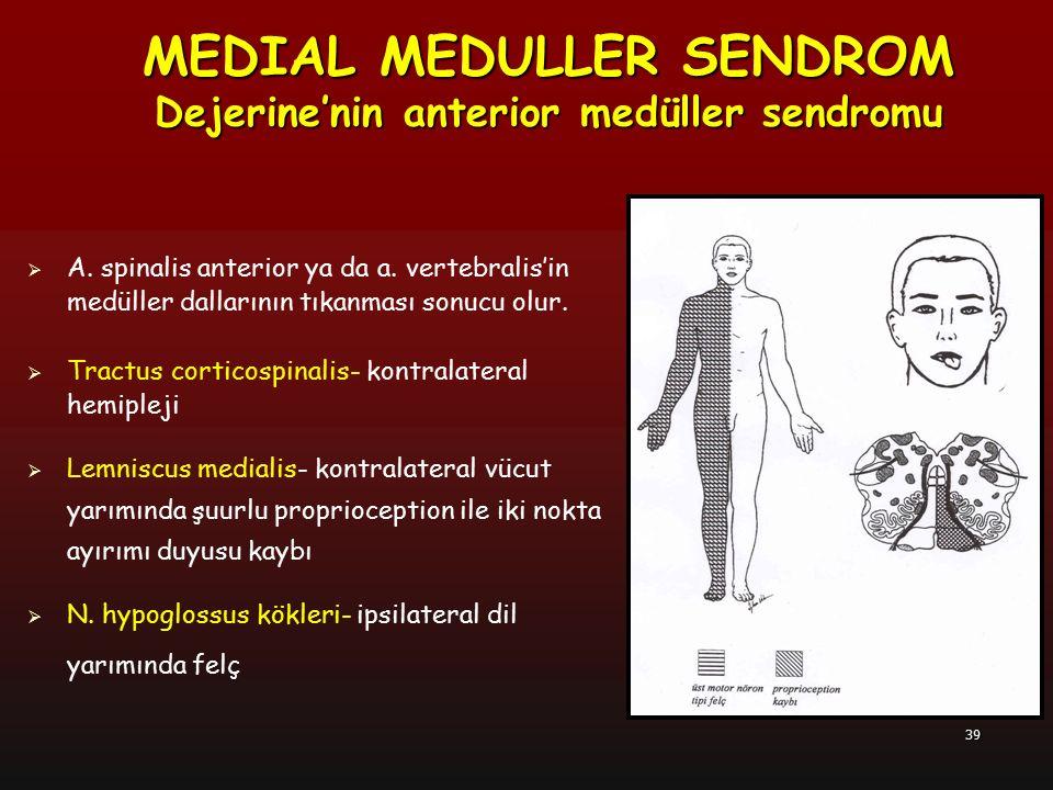 MEDIAL MEDULLER SENDROM Dejerine'nin anterior medüller sendromu