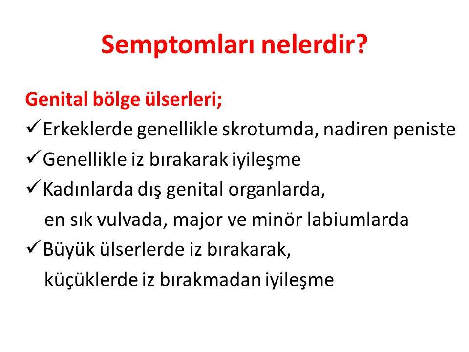 Semptomları nelerdir Genital bölge ülserleri;