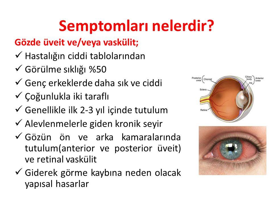 Semptomları nelerdir Gözde üveit ve/veya vaskülit;