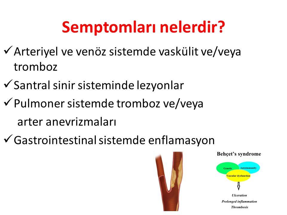 Semptomları nelerdir Arteriyel ve venöz sistemde vaskülit ve/veya tromboz. Santral sinir sisteminde lezyonlar.