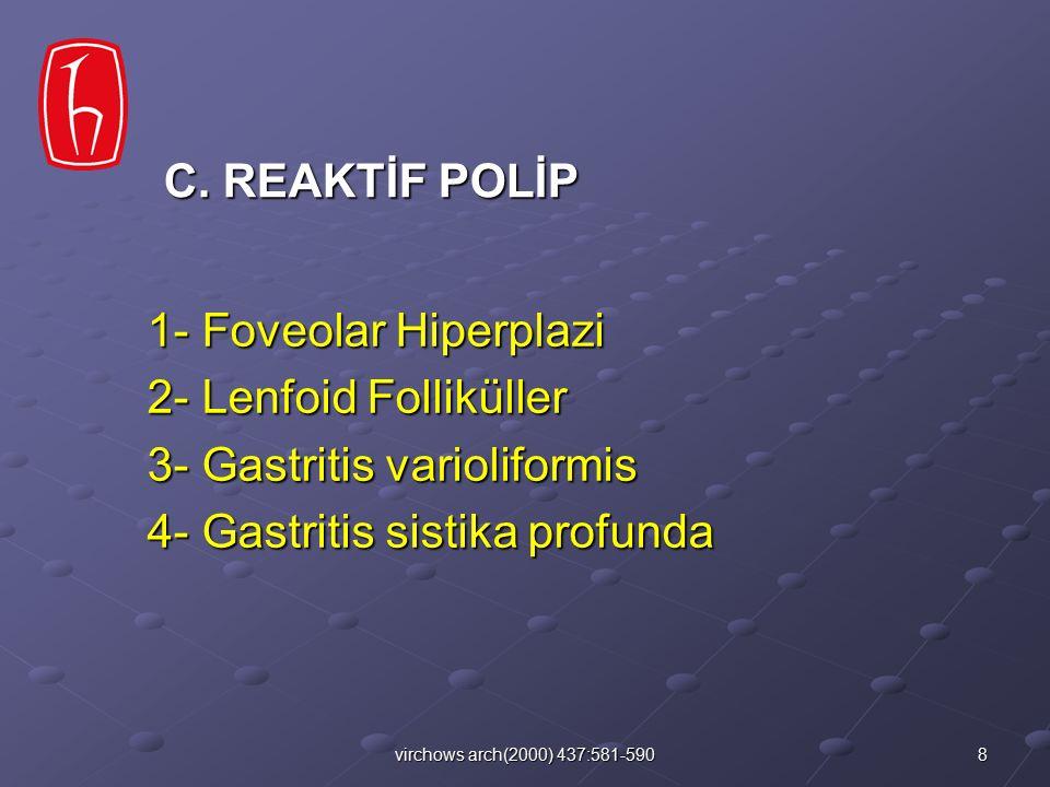 3- Gastritis varioliformis 4- Gastritis sistika profunda