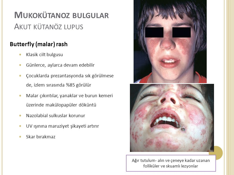 Mukokütanoz bulgular Akut kütanöz lupus