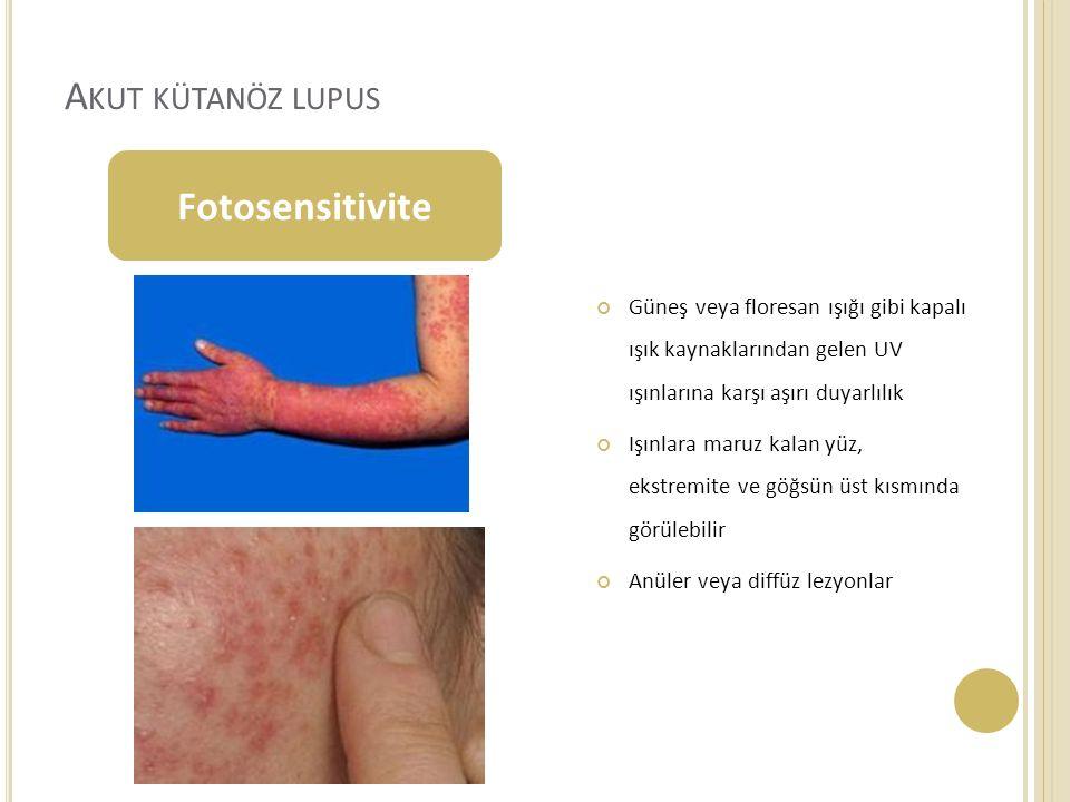 Akut kütanöz lupus Fotosensitivite
