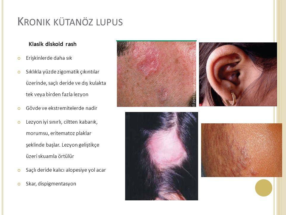 Kronik kütanöz lupus Klasik diskoid rash Erişkinlerde daha sık