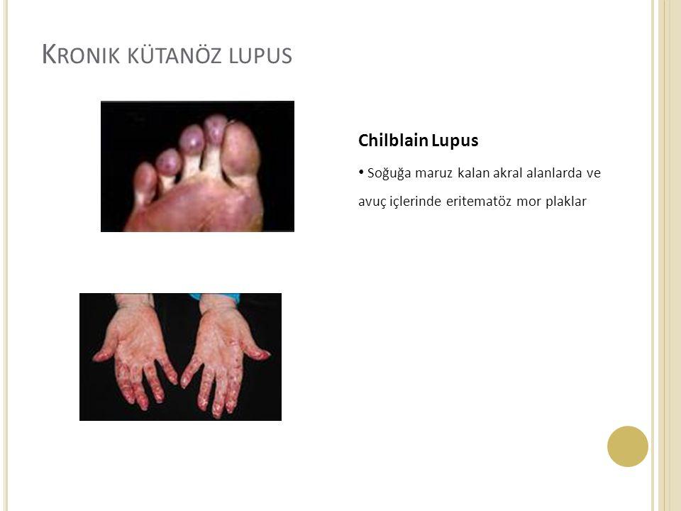 Kronik kütanöz lupus Chilblain Lupus