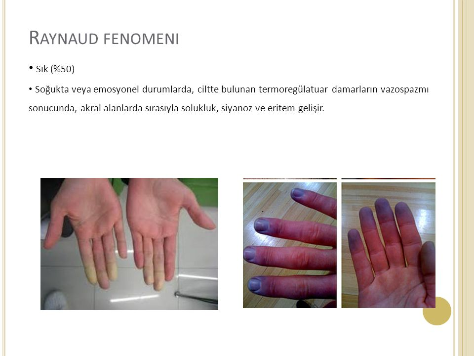 Raynaud fenomeni Sık (%50)