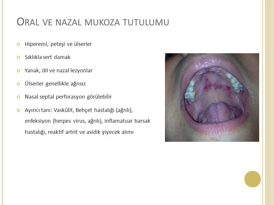 Oral ve nazal mukoza tutulumu