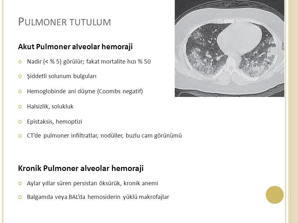 Pulmoner tutulum Kronik Pulmoner alveolar hemoraji