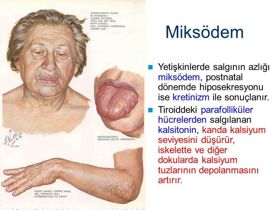 Miksödem Yetişkinlerde salgının azlığı miksödem, postnatal dönemde hiposekresyonu ise kretinizm ile sonuçlanır.