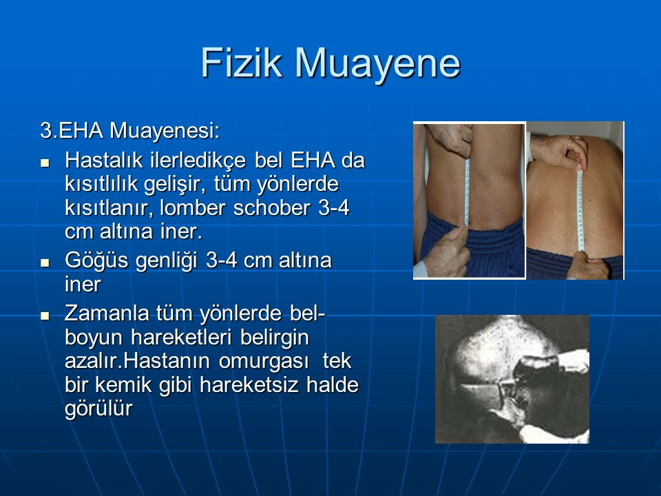 Fizik Muayene 3.EHA Muayenesi: