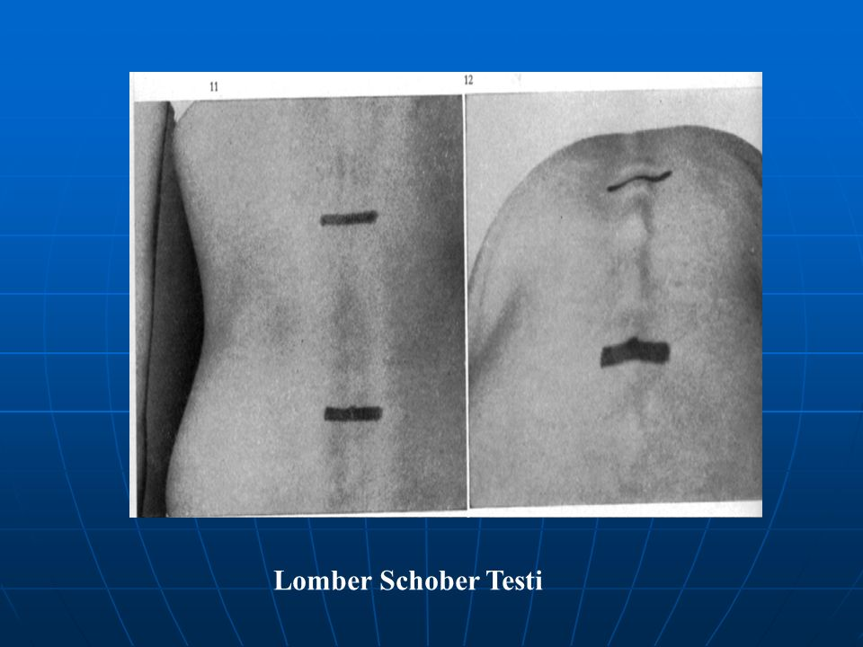 Lomber Schober Testi