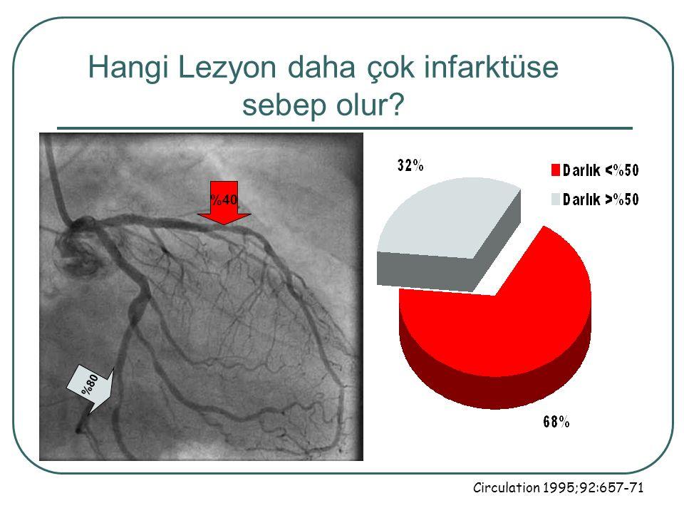 Hangi Lezyon daha çok infarktüse sebep olur